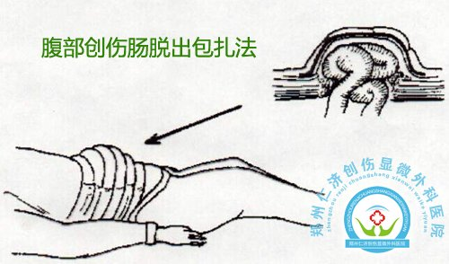 4,诊断性腹腔穿刺或腹腔灌洗获得阳性结果;腹腔动脉造影,腹腔内