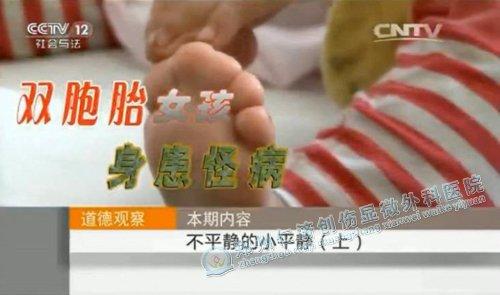 重磅新闻:咱郑州人的事迹又上央视了,这次不只是技术高超……